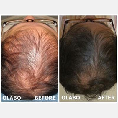 OLABO Shampoo - โอลาโบ แชมพูแก้ผมร่วง เร่งผมยาว (200 mL)
