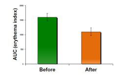 Gluta Ultra ROC - กลูต้า อัลตร้า อาร์โอซี อาหารเสริมผิวขาว (30 แคปซูล)